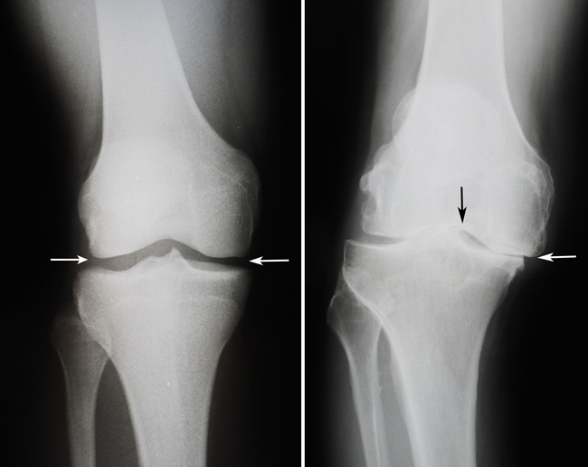 Total Knee Replacement on Addition Tests